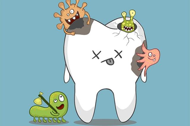 La caries dental y tus hábitos alimenticios