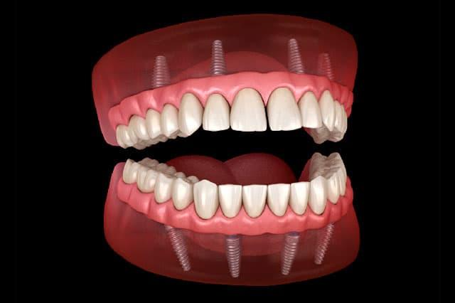 8 características de los implantes cigomáticos