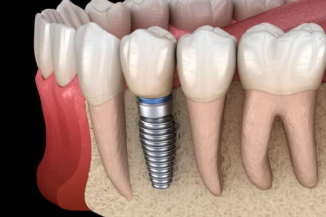 Apenas tenemos hueso debajo de pieza dental, ¿podemos realizarnos un implante?