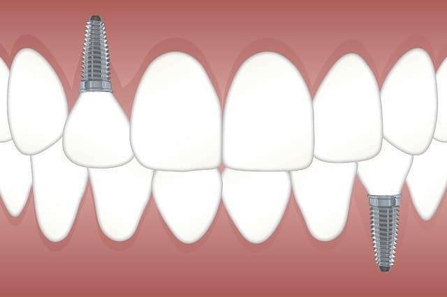 ¿Cuánto hueso se necesita alrededor de un implante dental?