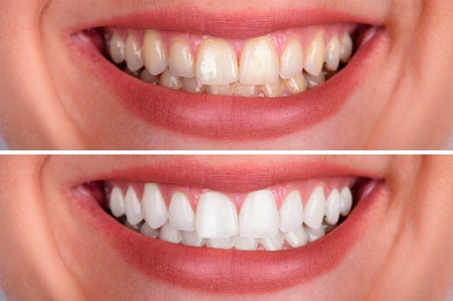 Diez consejos para mantener los dientes blancos y sanos