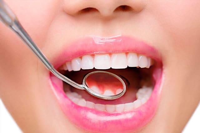 La estética de tus dientes es importante