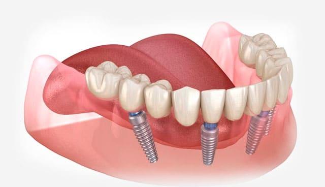 indicados los implantes cigomáticos