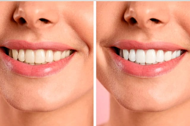 Siete razones para realizarme un blanqueamiento dental
