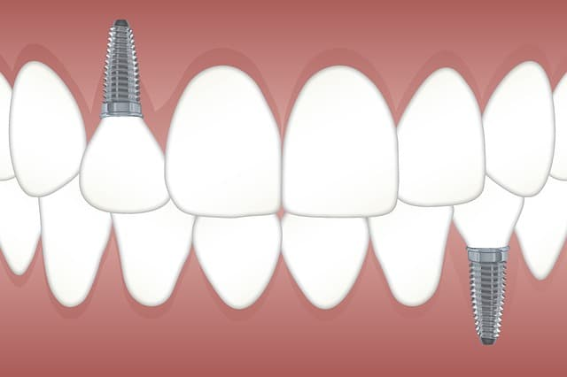 Tipos de implantes según la cantidad de fases