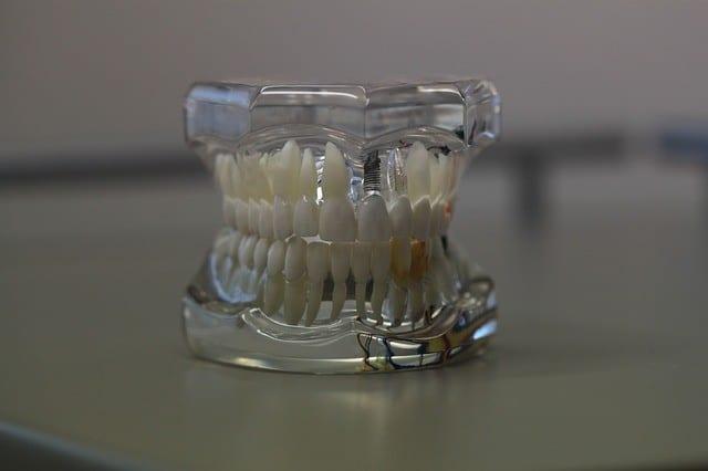 Causas más frecuentes de la movilidad dental