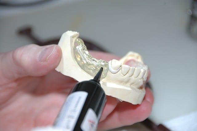 Lafalta de piezas dentalesprovoca varias alteraciones