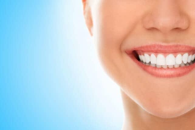 Por qué te conviene blanquear tus dientes