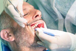 ¿es molesta la cirugía de implantes dentales?