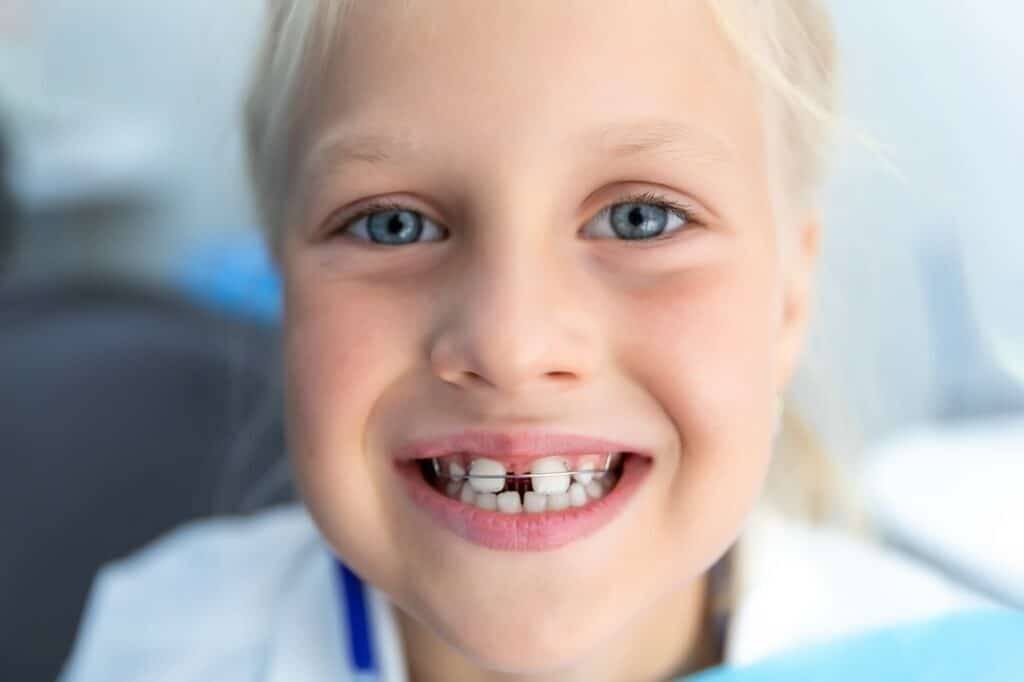 ortodoncia infantil invisible
