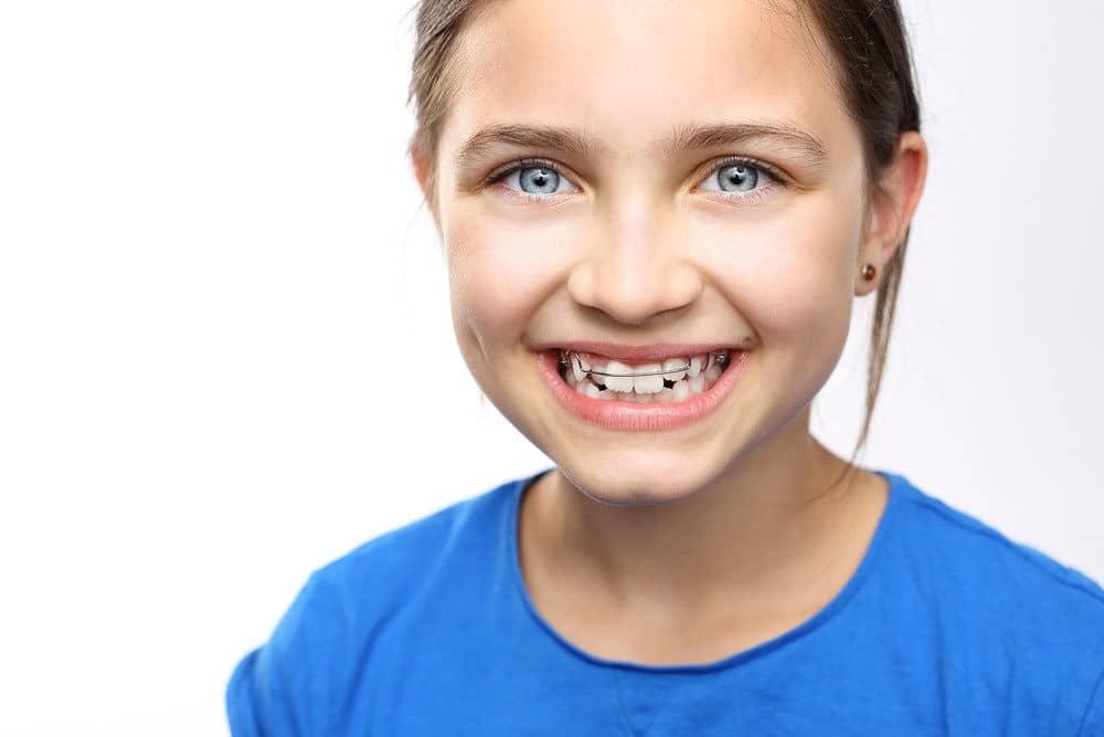 Ortodoncia infantil y la importancia de las revisiones mensuales