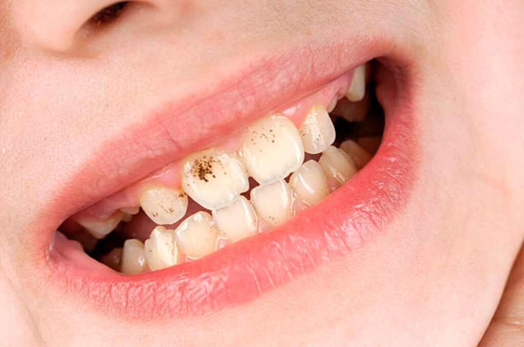 manchas-negras-en-los-dientes