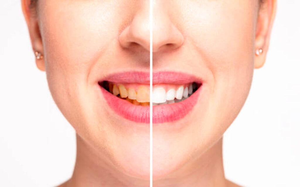 microabrasion dental   manchas dentales