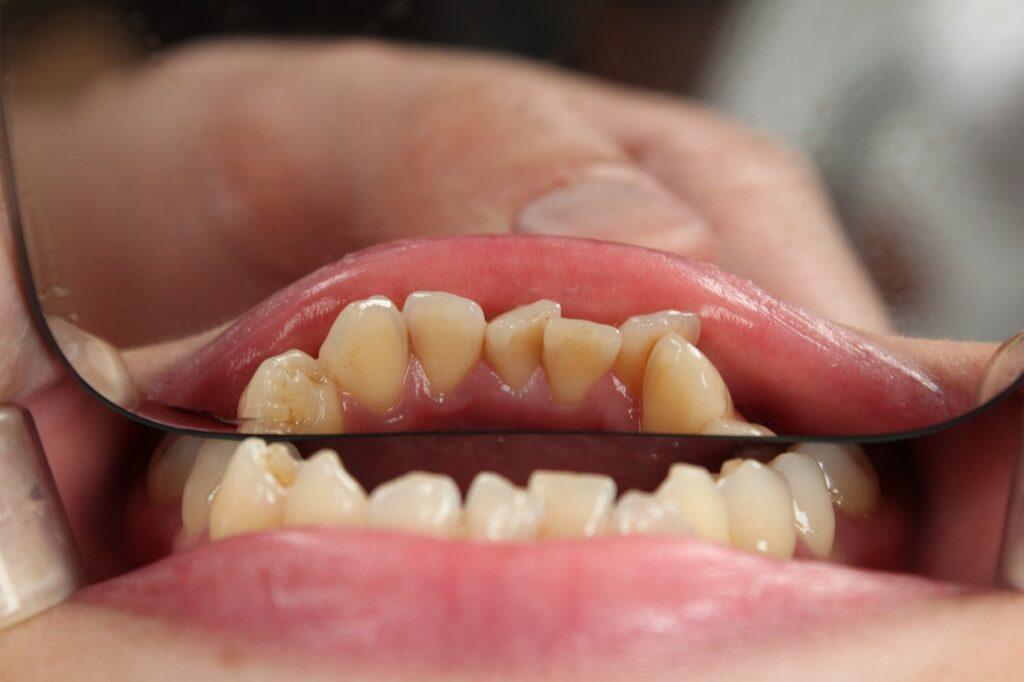 Apiñamiento dental: cómo se puede solucionar