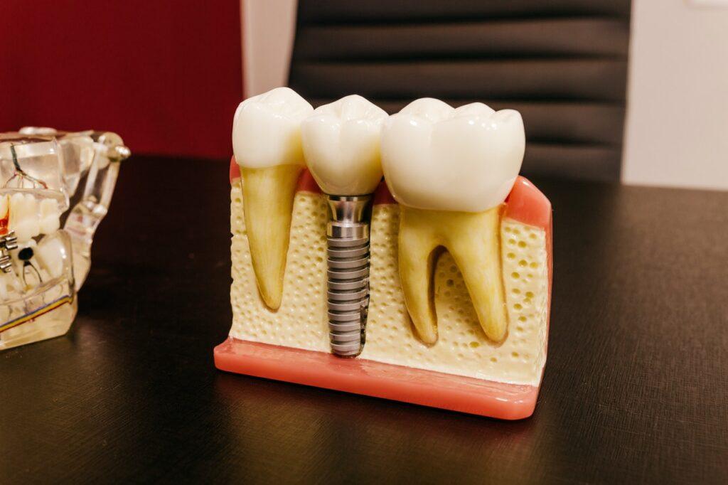 Diferencias entre implantes dentales y puentes dentales